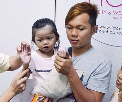小嘉渝严重发绀,肤色、手指及脚趾明显呈紫蓝色。