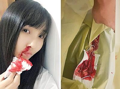 努达瓦在网上晒出了一张自己流鼻血的照片。