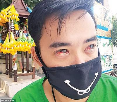 昆松穆特眼睛充血。