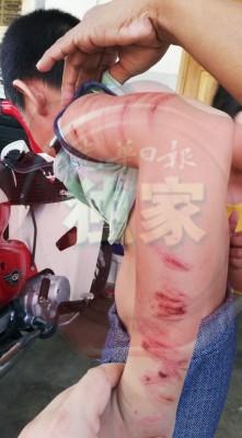 ae0302a2     男童手部布满一道道红色血印的鞭痕,令人看了怵目惊心。