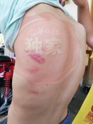男童背部也有一道道的鞭痕。