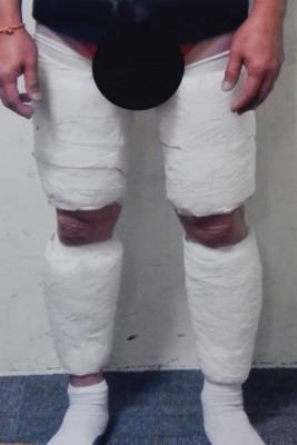 疑犯把冰毒绑在双腿。(警方提供照片)